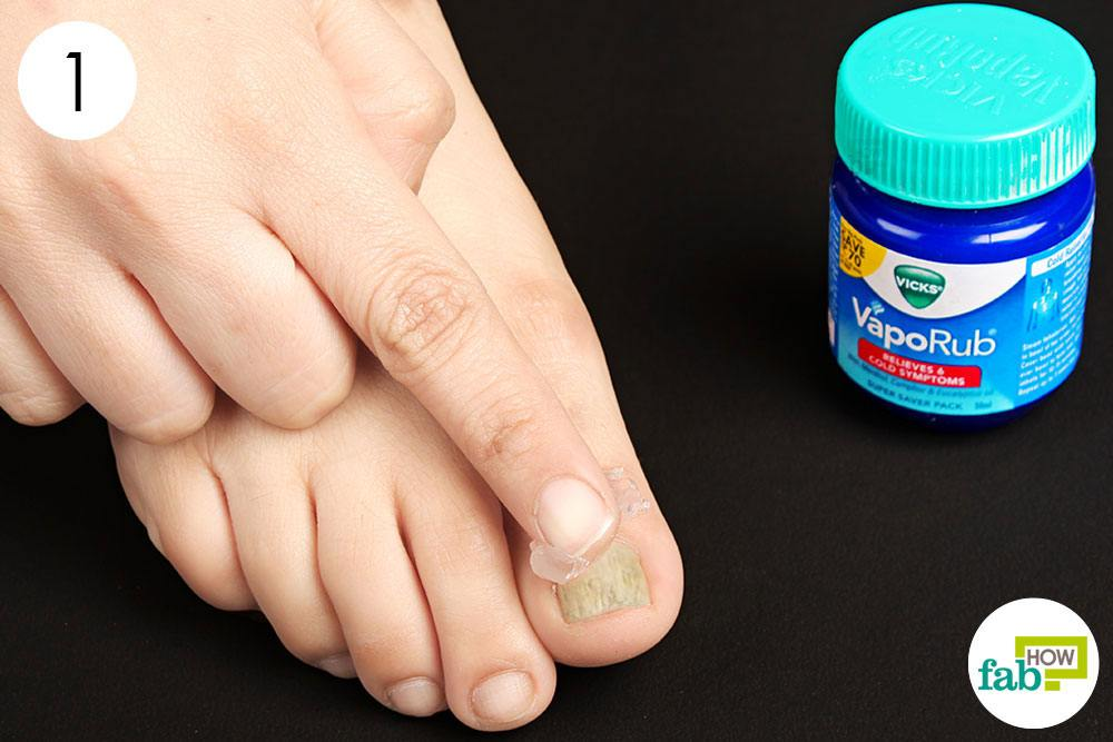 Cover The Affected Nails With Vicks