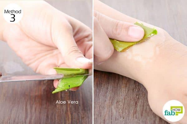 Rub aloe vera gel to treat vitiligo
