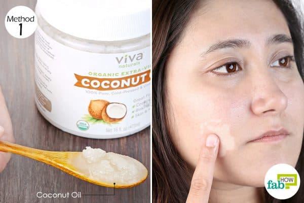 rub coconut oil to treat vitiligo