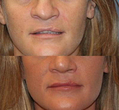 Cleft Lip Permanent Cosmetics