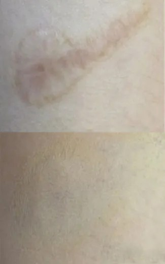 Paramedical Tattooing Skin Scar Camouflage