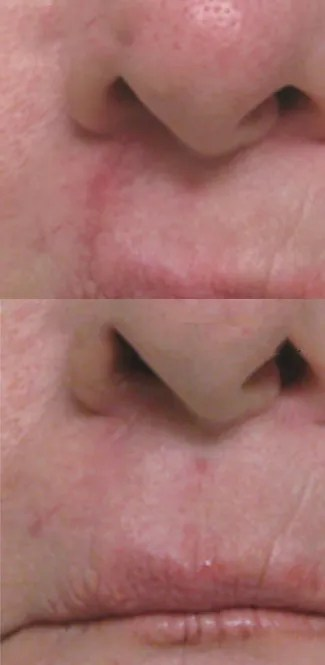 Paramedical Tattooing Cleft Lip Camouflage