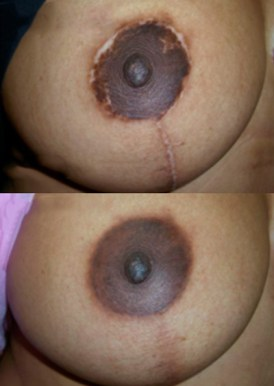 Paramedical Tattoo Areola Restoration