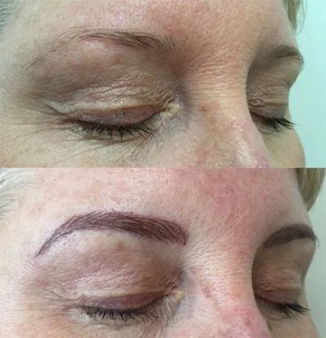 microblading-before-and-after-28
