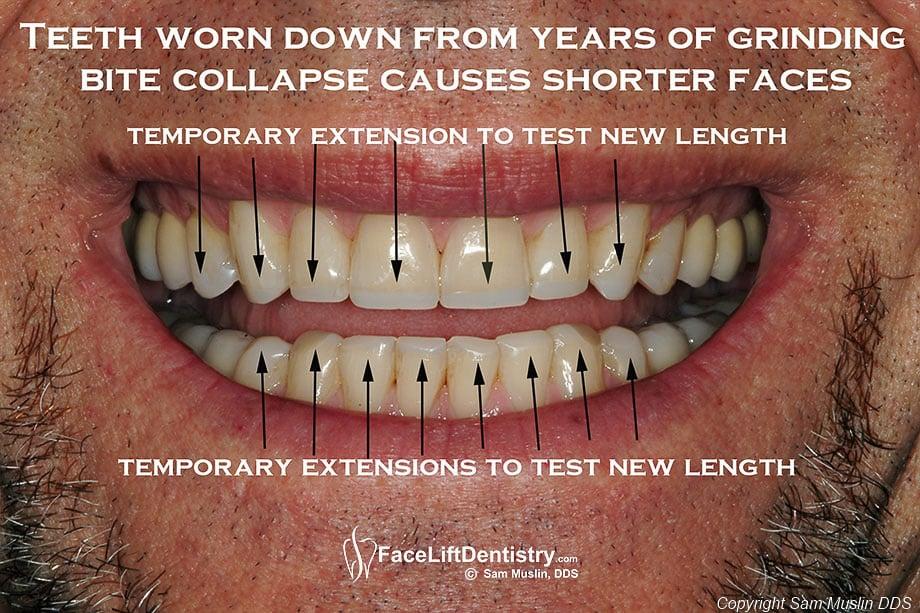 Reconstructing Teeth