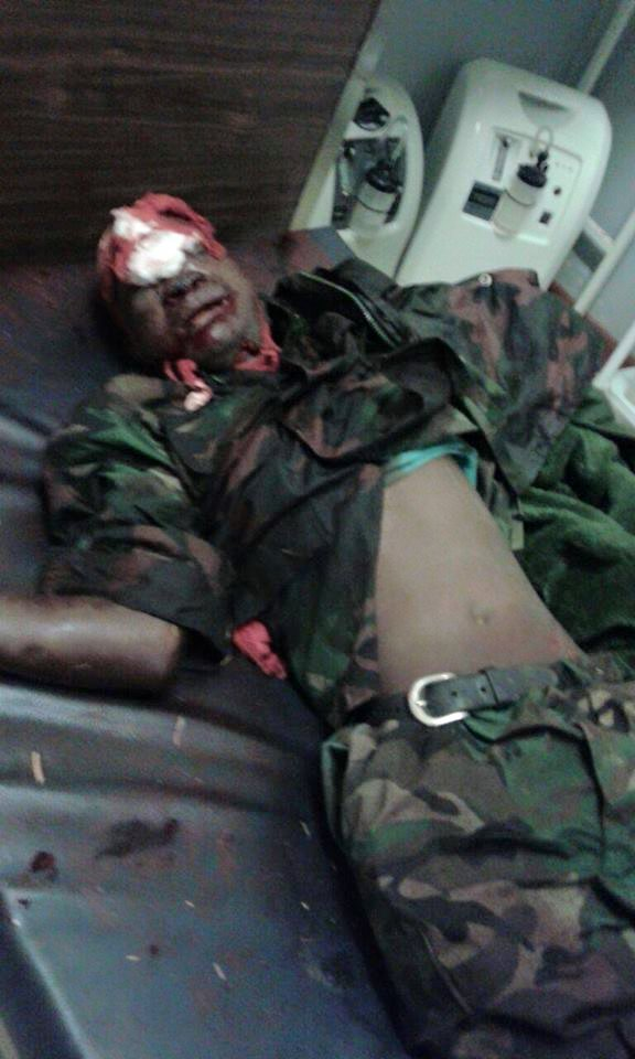MDF SOLDIER COMMITS SUICIDE BY SHOOTING HIMSELF | Face Of ...
