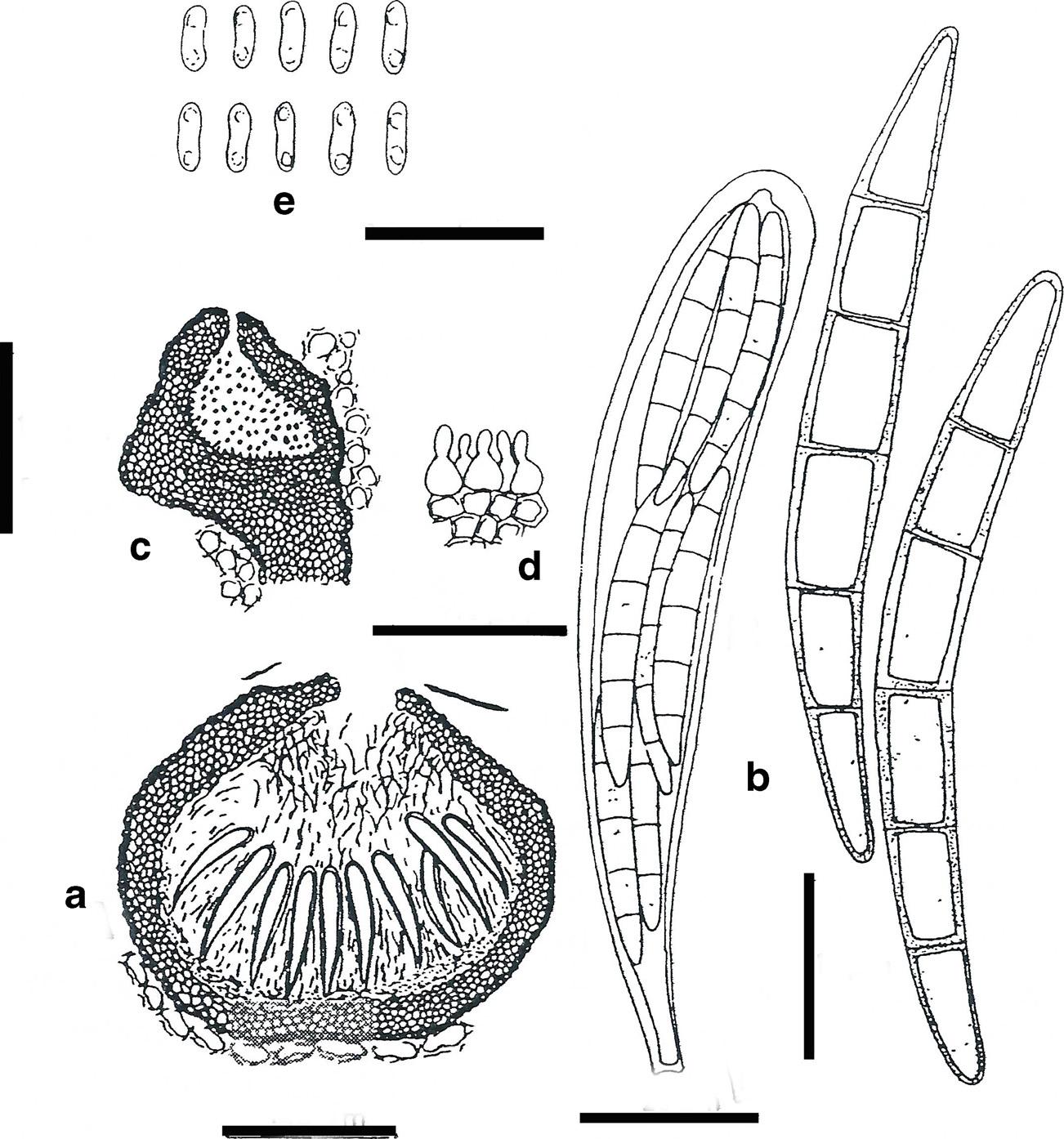 Plenodomus Lingam