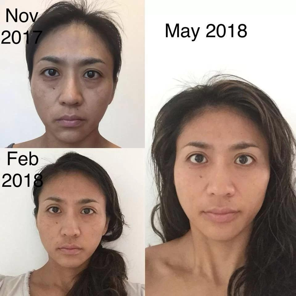 Voor en na 15