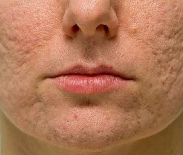 Scars Can Arise From Non Inflammatory Acne Like Whiteheads And Blackheads