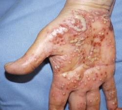 SAPHO Syndrome and Acne