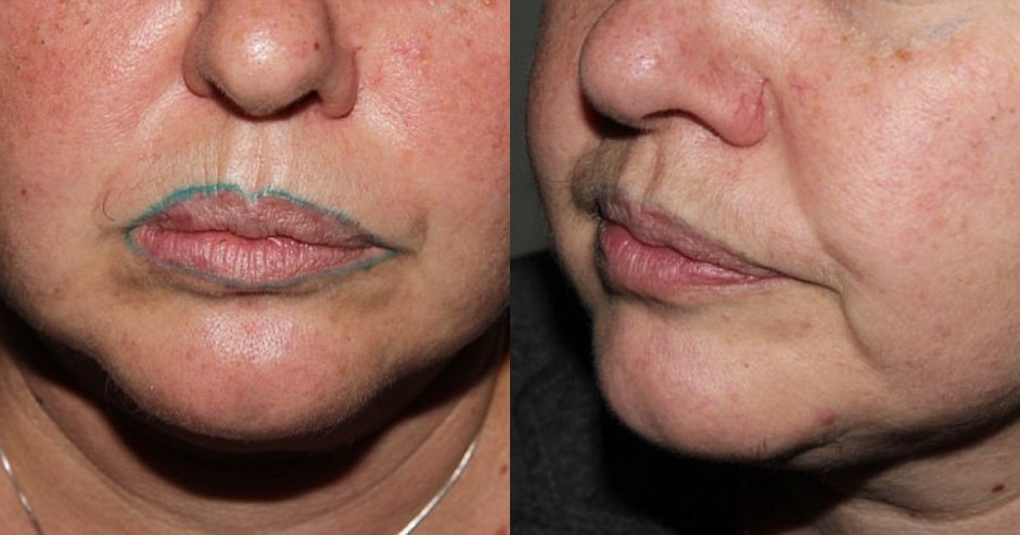 Lip tattoo gone wrong: One woman\'s permanent green lip liner ...