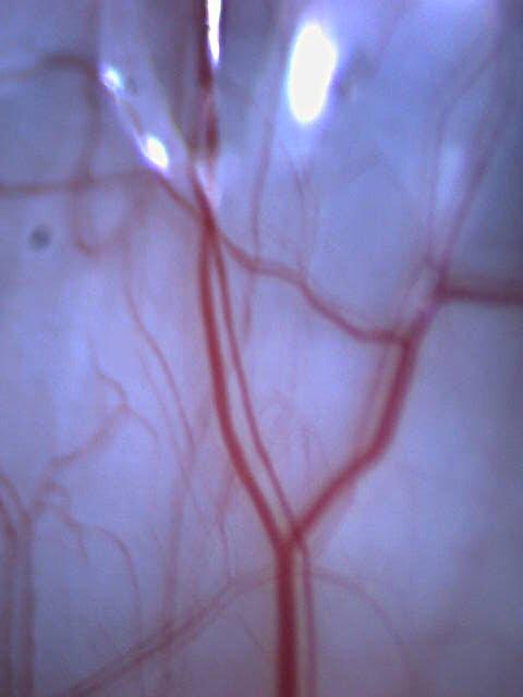Eye Capillaries ©Frank H. Jump