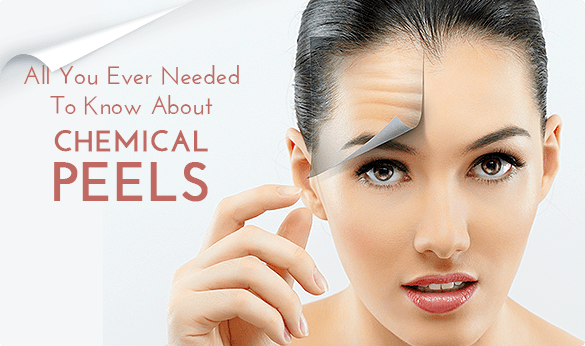 To Know About Chemical Peels