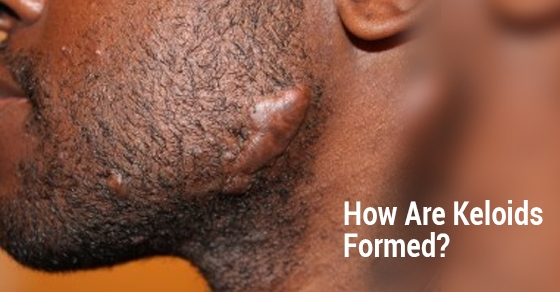 How-Are-Keloids-Formed