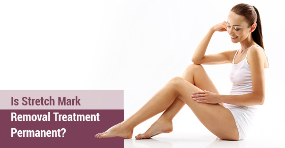 Is Stretch Mark Removal Treatment Permanent
