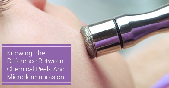 Knowing The Difference Between Chemical Peels And Microdermabrasion