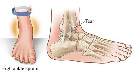 high ankle sprain, Fairview Physiotherapy and Rehabilitation Centre, physio, chiro, chiropractor, acupuncture, massage therapy, RT, registered therapist, osteopathy , osteo, rehab, recovery, physical therapy