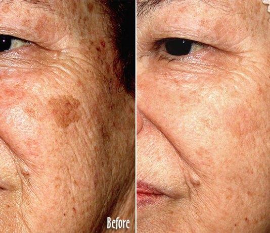 brown spots faiza beauty cream