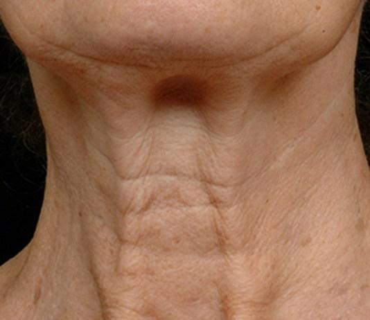 neck wrinkles faiza beauty cream