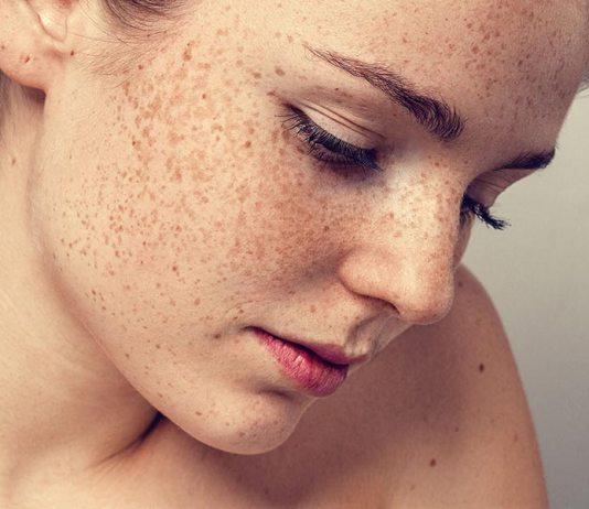 dark skin patches