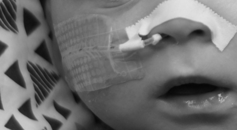 bébé sonde naso-gastrique