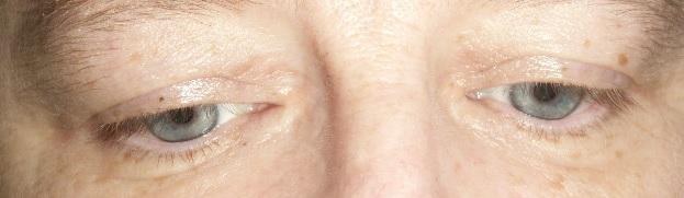 Family Clan Blog Jerome Alexander Lashtech Eye Lash Enhancing Serum Front View
