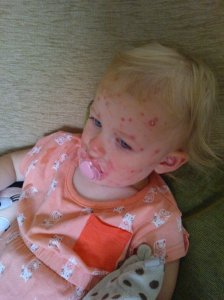 Olivia Chicken Pox