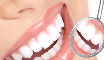 Teeth Whitening Wetherill Park