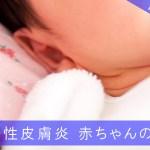 アトピー性皮膚炎になった赤ちゃんの肌ケア