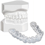 Toronto Teeth Whitening Trays