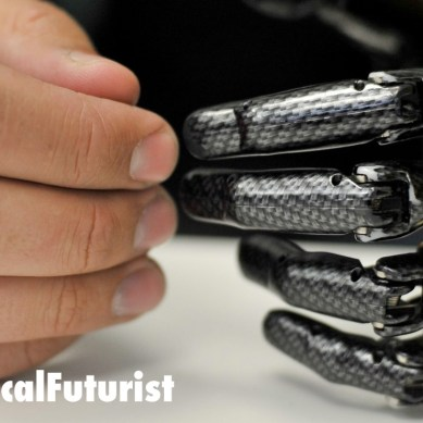 New prosthetic hand project will give amputees back their sense of touch