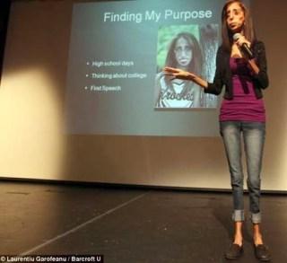 Kisah inspiratif Lizzie Velasquez