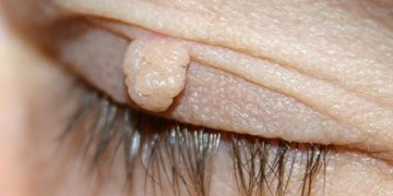 Fibromi penduli: eliminarli con rimedi naturali