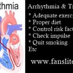 Arrhythmia Treatment
