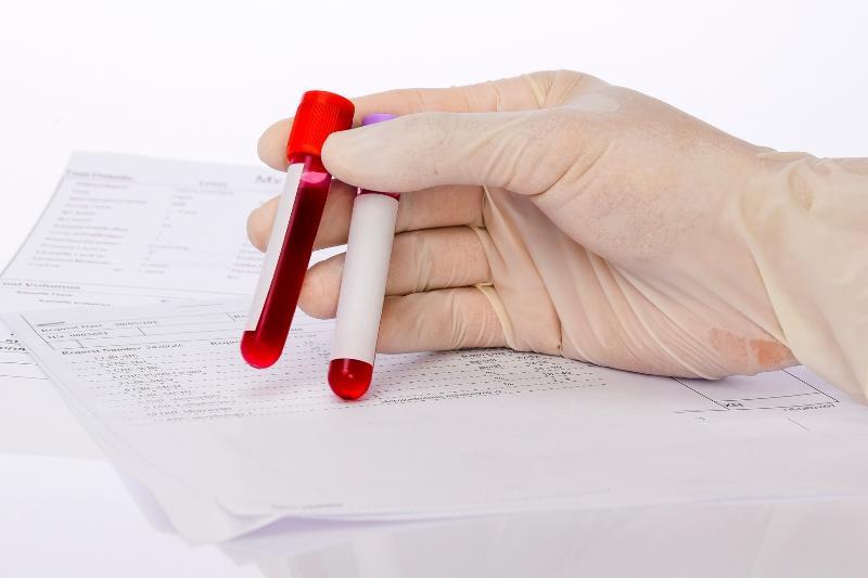 que es un analisis de sangre y para que sirve