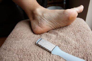 foot hard skin