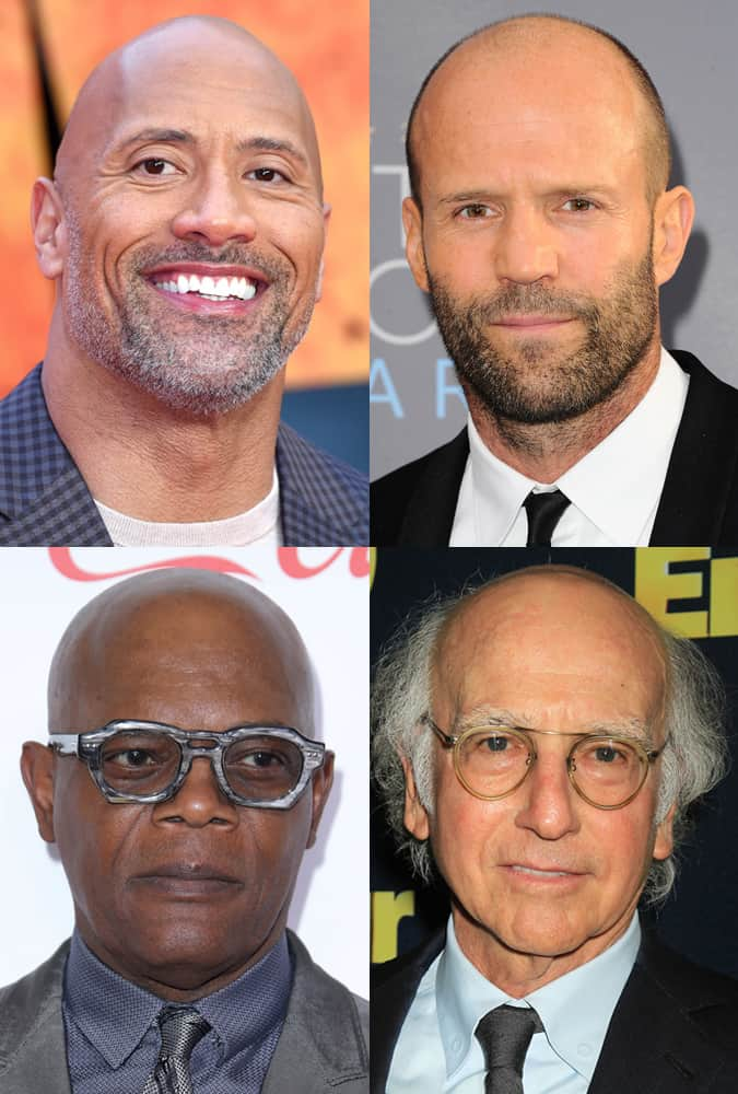 Celebrities with bald heads