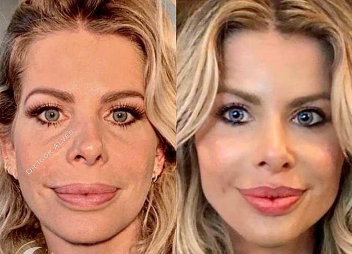 Karina Bacchi harminização facil antes e depois