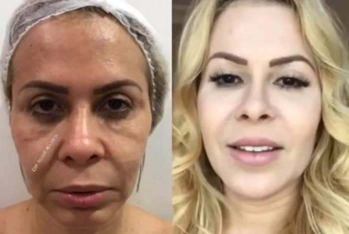 Joelma - Antes e depois