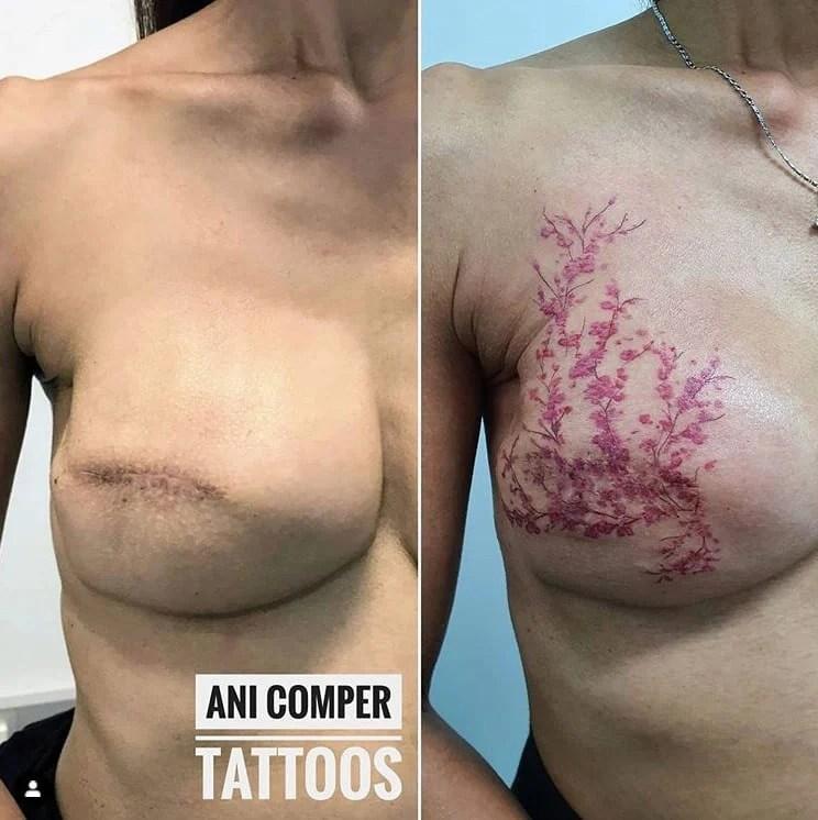 Tatuagem de flor de cerejeira no lugar do bico do peito e cicatriz de cirurgia mastectomia