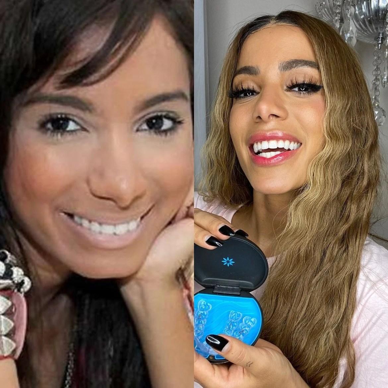 Anitta antes e depois da fama e das plásticas.