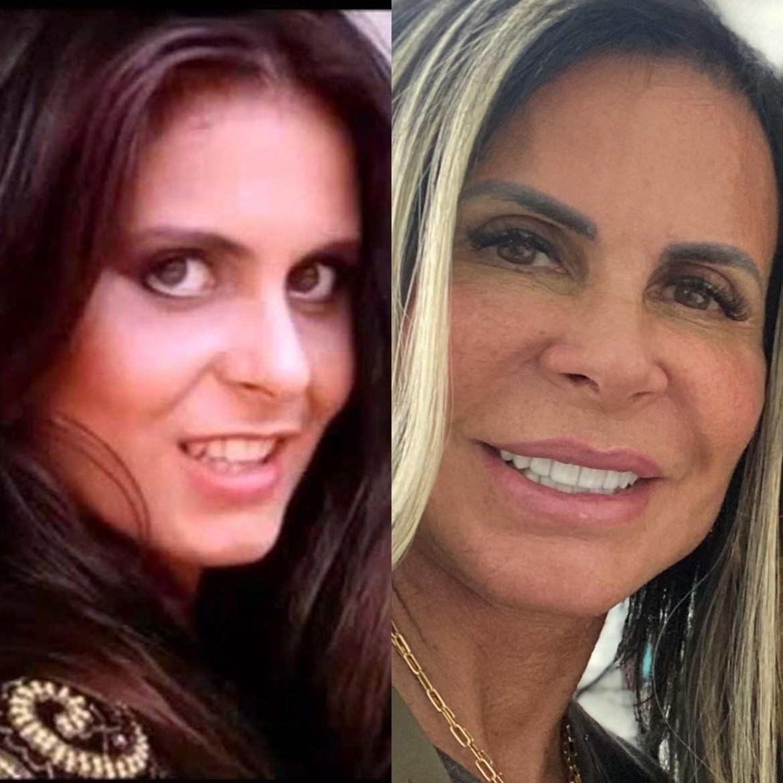 Gretchen antes e depois da fama.