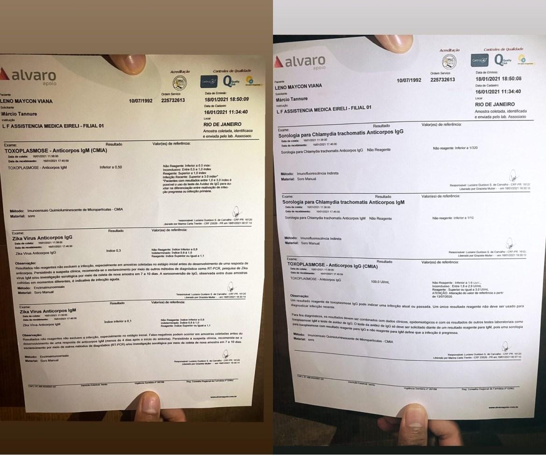Exames de HPV de Nego do Borel.
