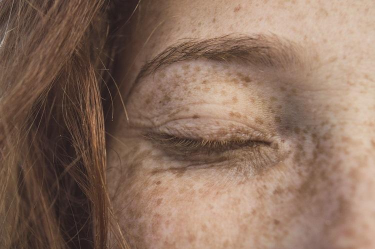 mulher de olhos fechados com sardas e manchas na pele