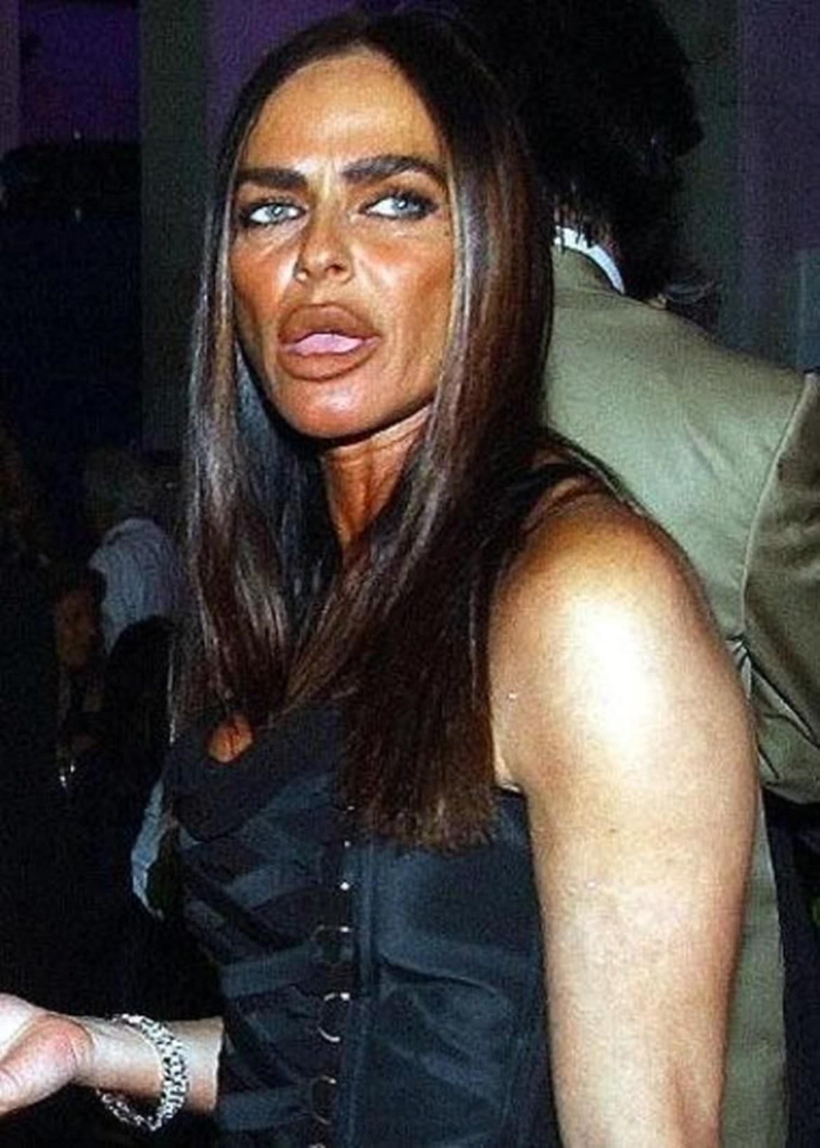 Michaaela Rominini - celebridades que mudaram muito após cirurgias plástica.
