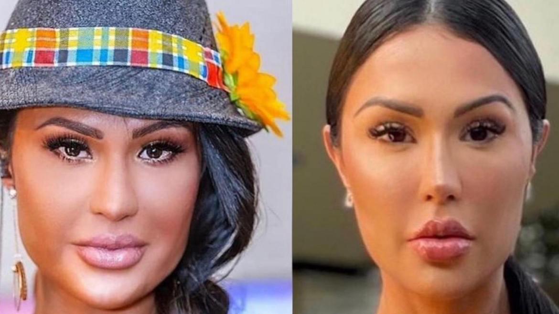 Gracyanne Barbosa, aos 37 anos, faz intervenção estética para afinar o rosto (imagem: Instagram)