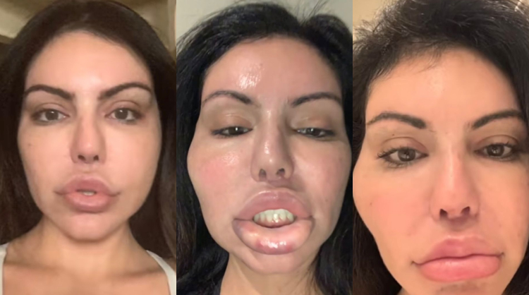 Liziane com boca inchada pós-cirurgia