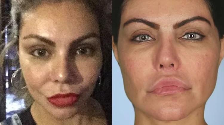 Mudança no rosto de Liziane