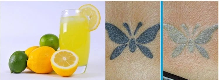 How To Remove A Permanent Tattoo DIY Methods And Surgical