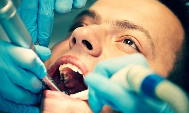Want to maintain Dental Filing for a Long Time? want to maintain dental filing for a long time? Want to maintain Dental Filing for a Long Time? Want to maintain Dental Filing for a Long Time